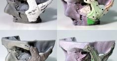 3D 프린터로 사람의 얼굴 복원 수술
